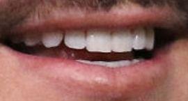Picture of Adam Lambert teeth and smile