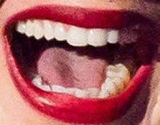 Adele smile and teeth