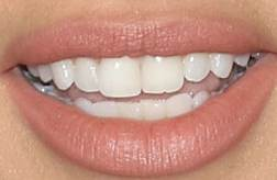 Picture of Adriana Lima's teeth