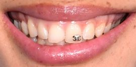 Picture of Adwoa Aboah teeth and smile