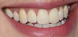 Picture of Agyness Deyn teeth and smile