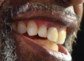 Picture of Al Roker teeth and smile