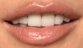 Picture of Alessandra Ambrosio teeth and smile