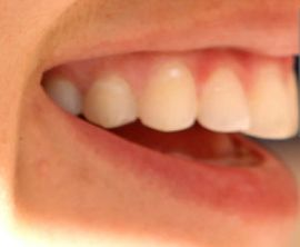 Picture of Alex Morgan teeth and smile