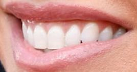 Picture of Alexa Bliss teeth and smile