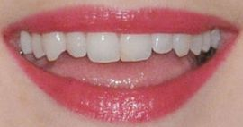 Picture of Alexandra Breckenridge teeth and smile