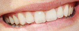 Picture of Lexi Thompson teeth and smile