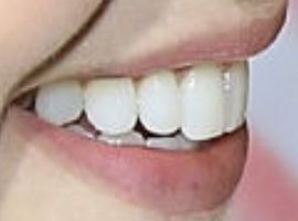 Picture of Amanda Schull teeth and smile