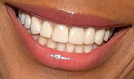 Picture of Amber Ruffin teeth and smile