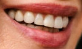 Picture of Andie MacDowell teeth and smile