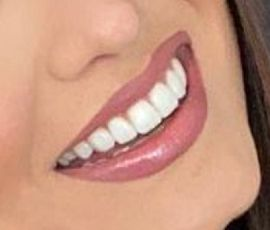 Picture of Andrea Meza teeth and smile