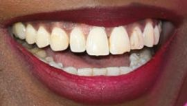 Picture of Angelica Ross teeth and smile