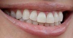 Angelina Jolie's teeth