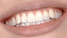 Angelina Jolie's teeth and smile