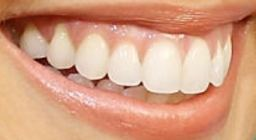 Picture of Anna Camp teeth