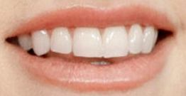 Picture of Anna Kendrick teeth
