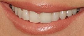 Picture of Annie Mumolo teeth and smile