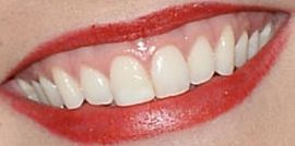 Picture of Annie Murphy teeth and smile
