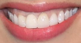 Picture of Ashley Graham teeth and smile