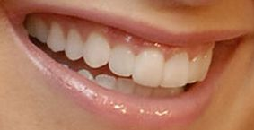 Picture of Ashley Tisdale teeth and smile