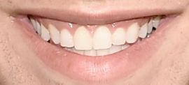 Picture of Austin Mahone teeth and smile