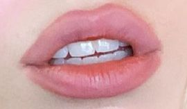 Ava Max's teeth and smile