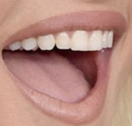 Picture of Bebe Rexha teeth and smile