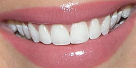 Picture of Becca Kufrin teeth and smile