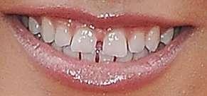 Becky G's teeth