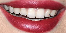 Picture of Bella Thorne's teeth and smile while smiling