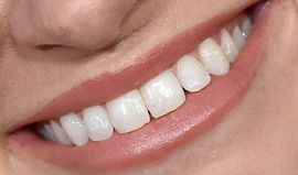 Picture of Beth Behrs teeth and smile