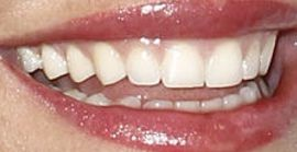 Picture of Bethenny Frankel teeth and smile