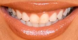 Picture of Beyonce's teeth