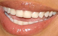 Picture of Beyonce's teeth while smiling