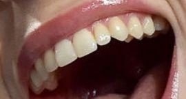 Billie Eilish's teeth and smile
