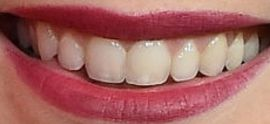 Picture of Billie Lourd teeth and smile