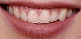 Picture of Bindi Irwin teeth and smile