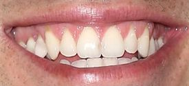 Picture of Brendon Villegas teeth and smile