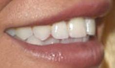 Britney Spears teeth