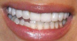 Brittny Gastineau teeth