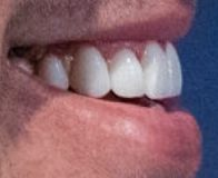 Picture of Brooks Koepka teeth and smile