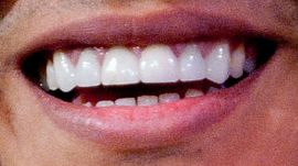 Picture of Bruno Mars teeth and smile