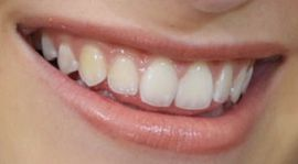Picture of Brynn Cartelli teeth and smile