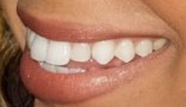 Picture of Brytni Sarpy teeth and smile
