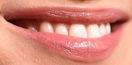 Picture of Caitriona Balfe teeth and smile