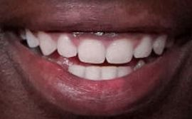 Picture of Caleb McLaughlin teeth and smile