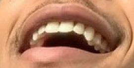 Picture of Cam Anthony teeth and smile