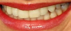 Picture of Cameron Diaz teeth and smile