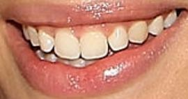 Picture of Cameron Russell teeth and smile