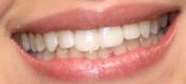 Camila Cabello's teeth